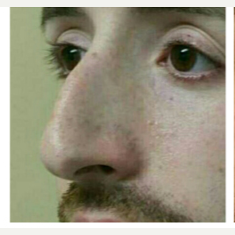 25-34 year old man treated with Rhinoplasty before 3687137