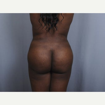 35-44 year old woman treated with Brazilian Butt Lift after 1867957