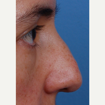 35-44 year old woman treated with Rhinoplasty before 3696344