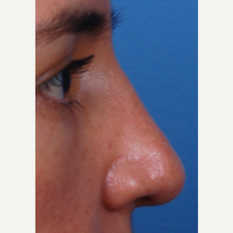 35-44 year old woman treated with Rhinoplasty after 3696344