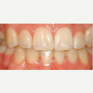 25-34 year old man treated with Damon Braces after 2589711
