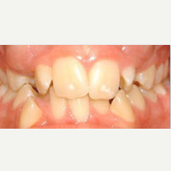 25-34 year old man treated with Damon Braces before 2589711