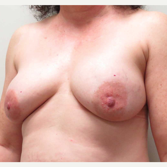 Breast Lift with Implants for this 51 Year Old Woman before 3043110