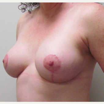 Breast Lift with Implants for this 51 Year Old Woman after 3043110