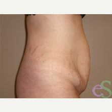 Tummy Tuck before 3484802