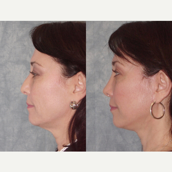 45-54 year old woman treated with Rhinoplasty before 3224122