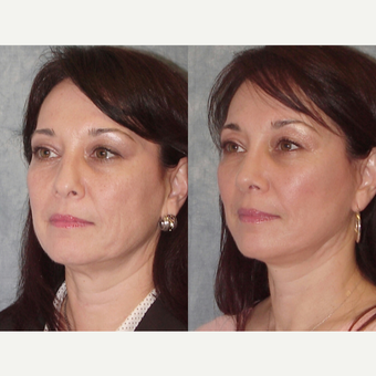 45-54 year old woman treated with Rhinoplasty after 3224122