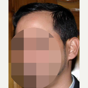 35-44 year old man treated with Hair Transplant after 3179199