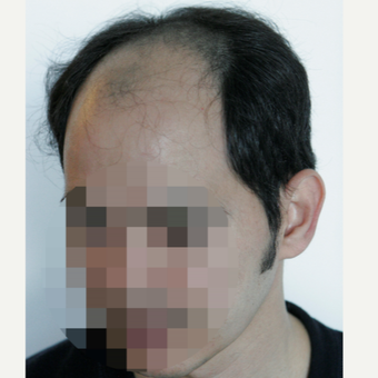 35-44 year old man treated with Hair Transplant before 3179199