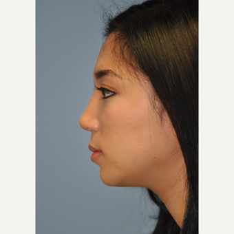 18-24 year old woman treated with Rhinoplasty after 3332395