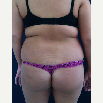 18-24 year old woman treated with Brazilian Butt Lift before 3836250