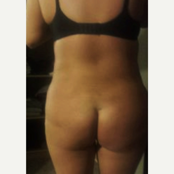18-24 year old woman treated with Brazilian Butt Lift after 3836250
