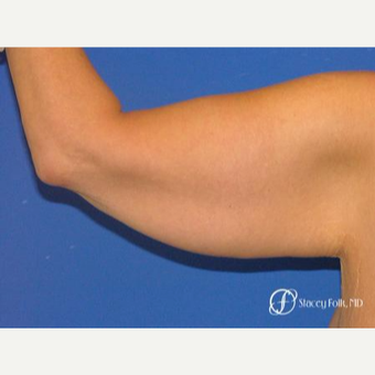 35-44 year old woman treated with Arm Lift before 3247568