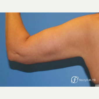 35-44 year old woman treated with Arm Lift after 3247568