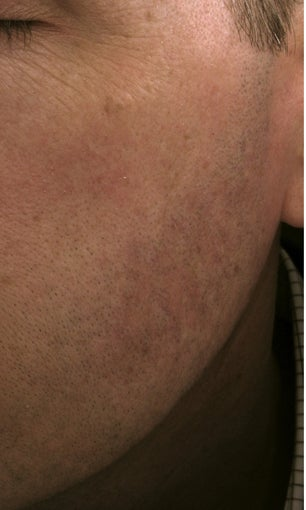 Cheek vessels treated with pulsed dye laser (PDL) after 821640