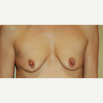 35-44 year old woman treated with Breast Lift with Implants before 3192521