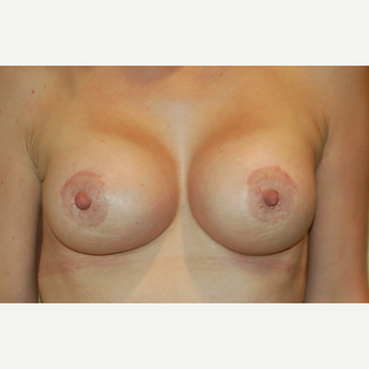 35-44 year old woman treated with Breast Lift with Implants after 3192521