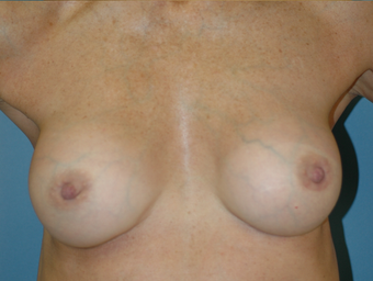 Nipple Reduction after 521330
