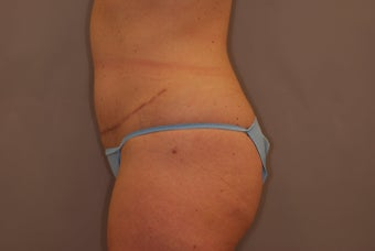 Abdominoplasty  after 516128