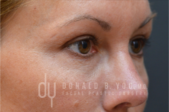 Upper Blepharoplasty after 3322724