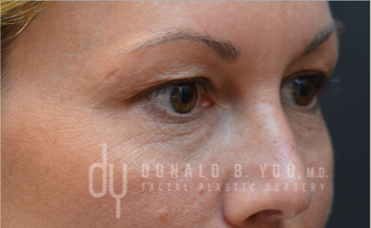 Upper Blepharoplasty before 3322724