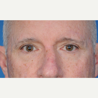 67 year old man treated with upper blepharoplasty after 3466719