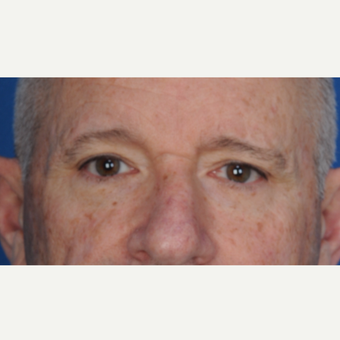 67 year old man treated with upper blepharoplasty before 3466719