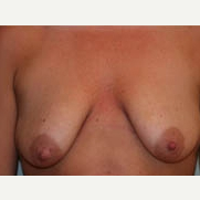 25-34 year old woman treated with Breast Lift before 3339057