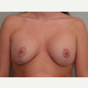 25-34 year old woman treated with Breast Lift after 3339057