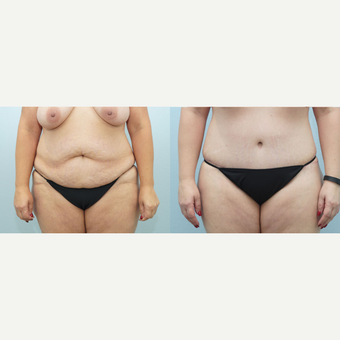 47 yr old Female - Body Lift and Breast Reduction before 3099810