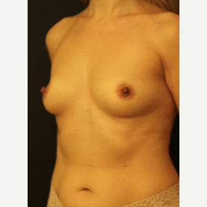 35-44 year old woman treated with Breast Augmentation before 3731923