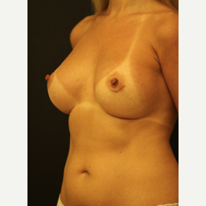 35-44 year old woman treated with Breast Augmentation after 3731923