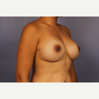 Late 30s female, Breast Augmentation after 3293263
