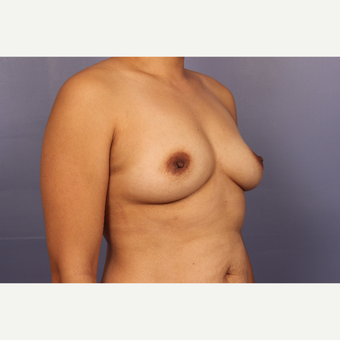 Late 30s female, Breast Augmentation before 3293263