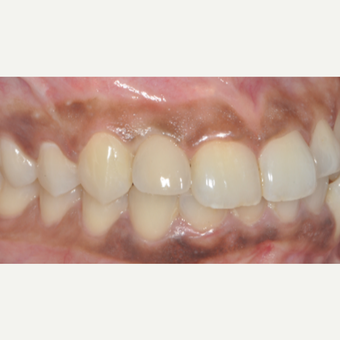 18-24 year old woman treated with Dental Implants