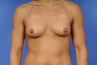 Breast Augmentation Silicone Breast Implants B Cup to D Cup before 698344