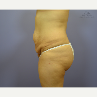 35-44 year old woman treated with Liposuction before 3421351