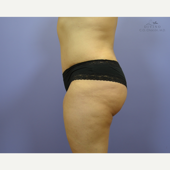 35-44 year old woman treated with Liposuction after 3421351