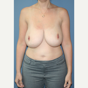 25-34 year old woman treated with Breast Reduction before 3453042