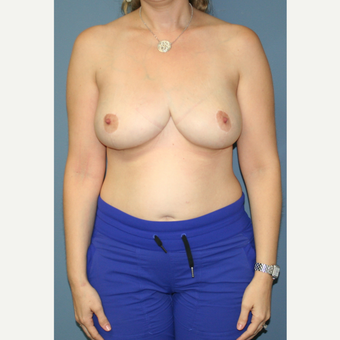 25-34 year old woman treated with Breast Reduction after 3453042