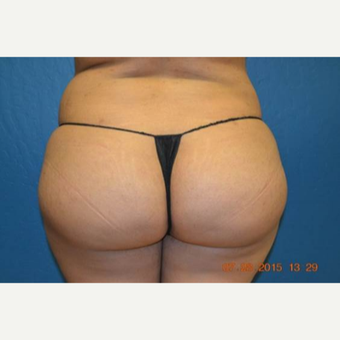 25-34 year old woman treated with Brazilian Butt Lift after 2999151