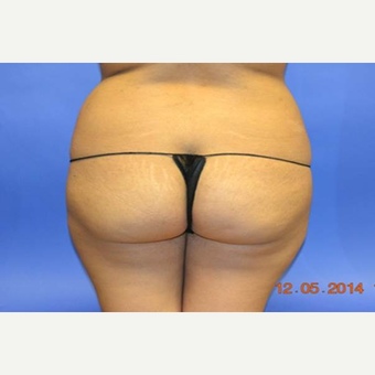 25-34 year old woman treated with Brazilian Butt Lift before 2999151