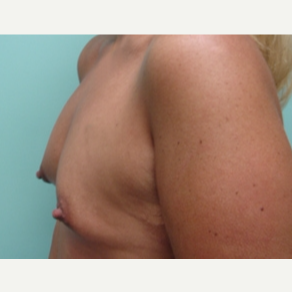 45-54 year old woman treated with Breast Augmentation before 3168065
