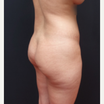 25-34 year old woman treated with Butt Lift before 3267059