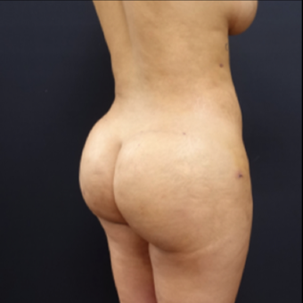 25-34 year old woman treated with Butt Lift after 3267059