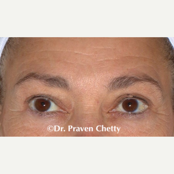 45-54 year old woman treated with Botox before 3705013