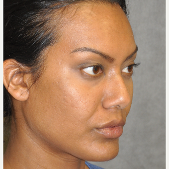 35-44 year old woman treated with Ultherapy after 3181730