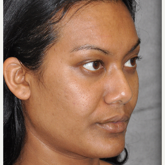 35-44 year old woman treated with Ultherapy before 3181730