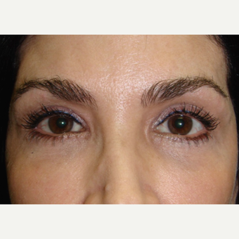 45-54 year old woman treated with Restylane after 2060690