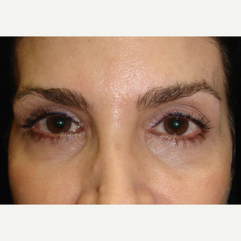 45-54 year old woman treated with Restylane before 2060690